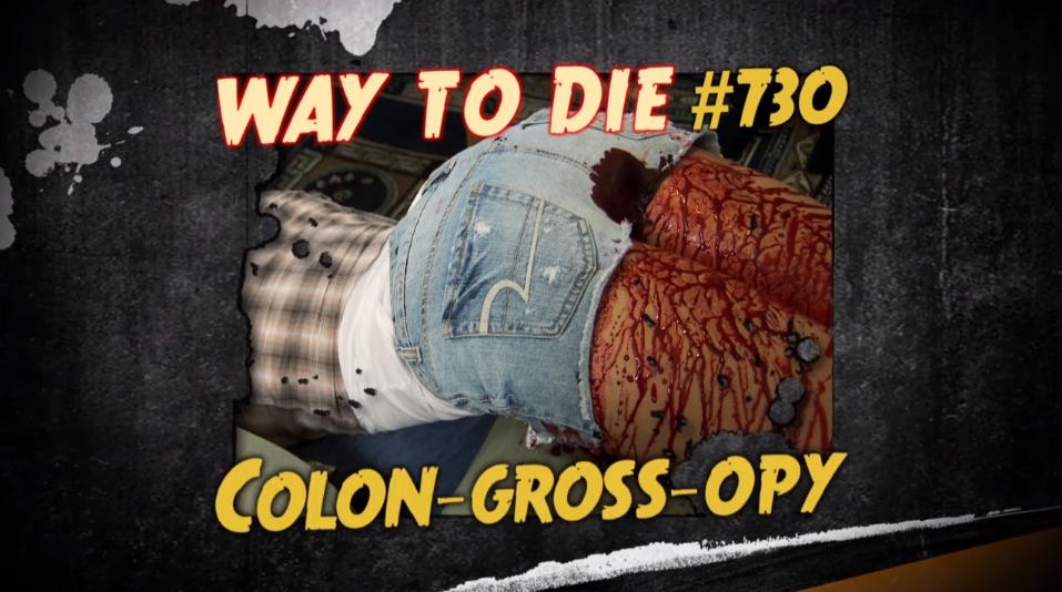 Colon Gross Opy