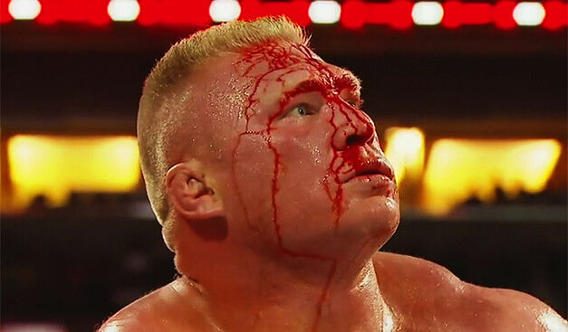 "A battered Lesnar is not ""best for business"""