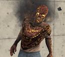 Burn Victim