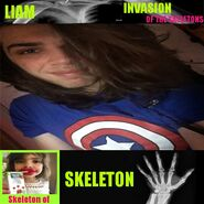Skeletons Liam
