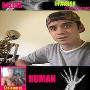 Skeletons Dallas