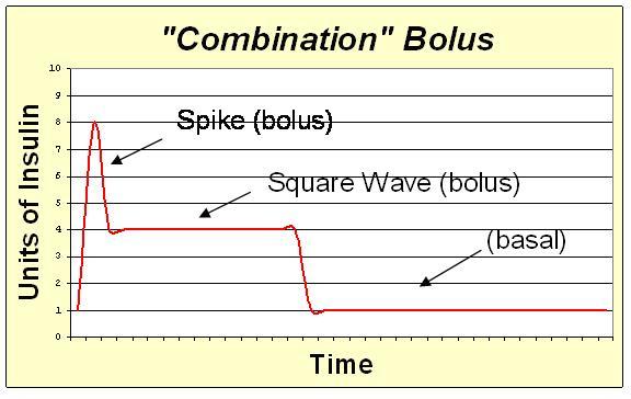 File:Combo bolus.JPG