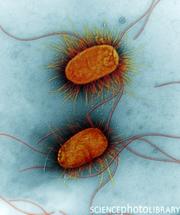 401px-E. coli enteropatogenica