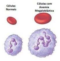 Anemiamegaloblasticaim