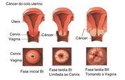 Câncer-colo-uterino