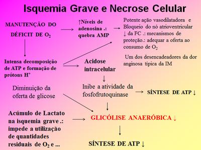 Isquemia grave
