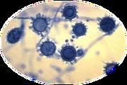 Histoplasmose 1