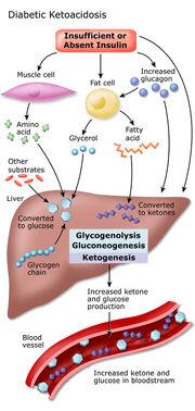 Symptoms-Of-Diabetes-Ketoacidosis