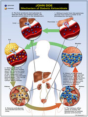 Symptoms-Of-Diabetes-Ketoacidosis-2