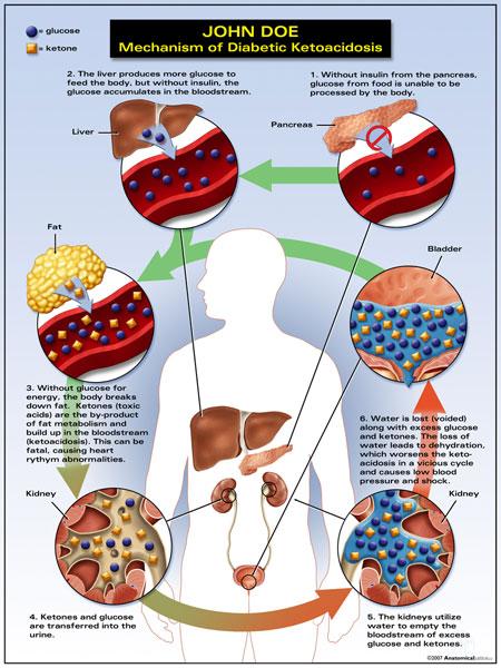 Complicaes agudas e crnicas do diabetes mellitus wiki aia 13 17 cetoacidose diabtica symptoms of diabetes ketoacidosis 2 ccuart Image collections