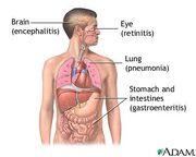 CMV sintomas