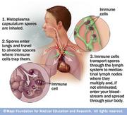 Histoplasmose