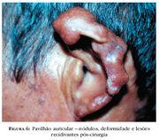 Pavilhao auricular