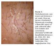 Tricobacteriiose