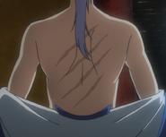 Kija's Scars