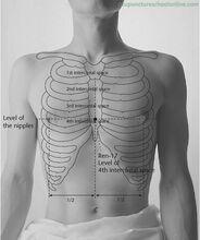 Ren-17-Chest-Centre-DANZHONG-Acupuncture-Points-1