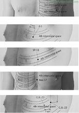 Ren-17-Chest-Centre-DANZHONG-Acupuncture-Points-2