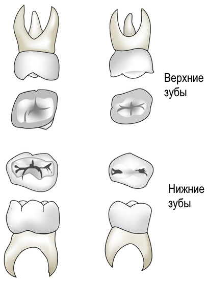 Верхние и нижние большие коренные зубы