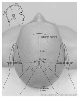 Du-20-Hundred-Meetings-BAIHUI-Acupuncture-Points-1