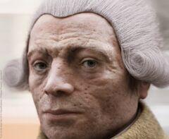 RobespierreSarkoidose