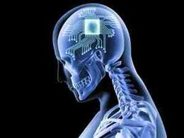 GehirnImplantat