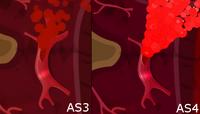 Burst Artery1