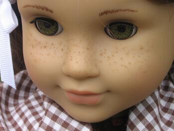 Freckling