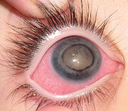 688px-Eye of patient with Coats' disease