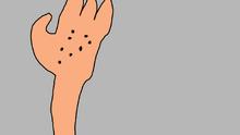 Hand ants