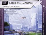 Cerebral Imaging