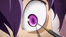 Minene verliert ihr Auge