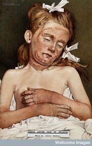 Pelagra-Dermatite