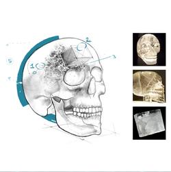 ACIV Crânes de cristal