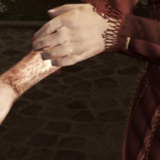 保拉为埃齐奥展示她的伤疤