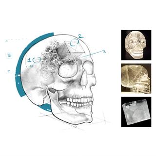 阿布斯泰戈对水晶头骨的描述