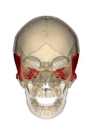 frontal plane divergence of pupils - sign for sphenoid torsion, Sphenoid