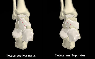 Metatarsus Supinatus vs No Met Supinatus