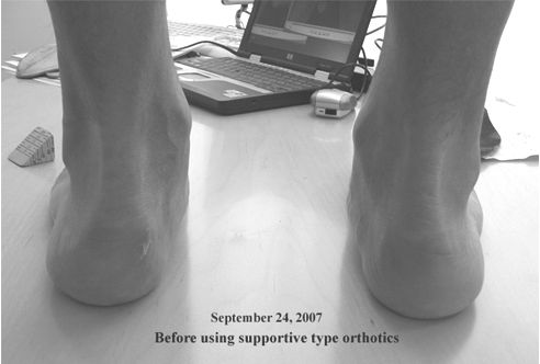 Arch Supports Weaken the Feet | Athlepedia, The Athletics Wiki