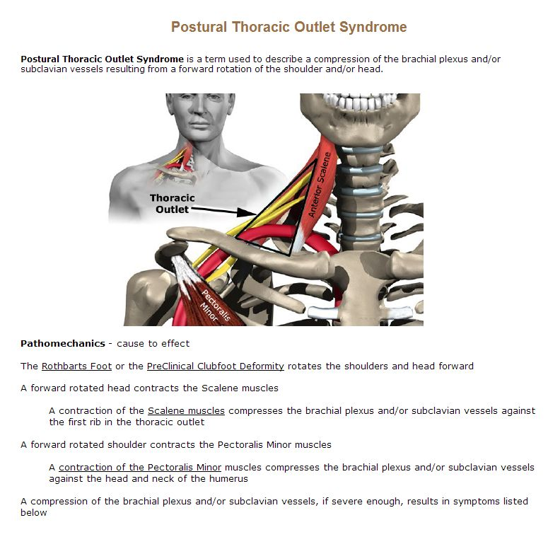 Postural Thoracic Outlet Syndrome | Athlepedia, The Athletics Wiki ...