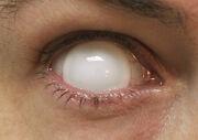 Blind eye new