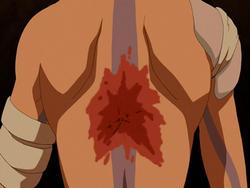Aang's scar