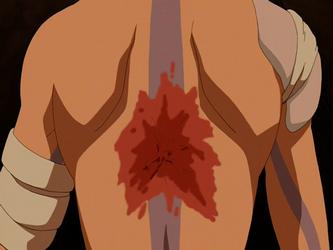 File:Aang's scar.png