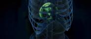 Chestburster X-ray