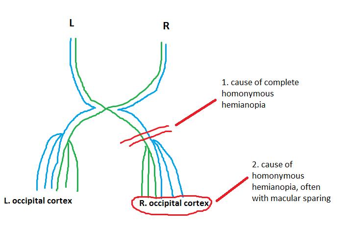 Homonymous Hemianopia Bitemporal Hemianopia | Barts Wiki ...
