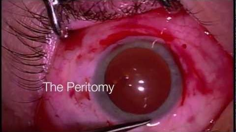 Scleral Buckle and Vitrectomy for Retinal Detachment
