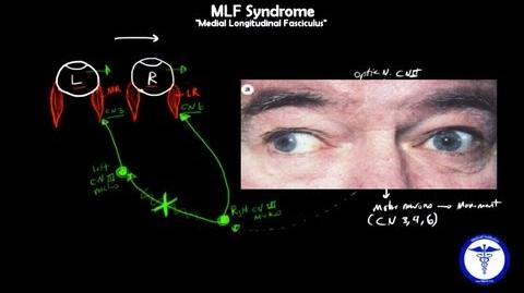 MLF syndrome - Internuclear Ophthalmoplegia, MADE SIMPLE-0