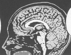 BAALO03 67 Brain x-ray