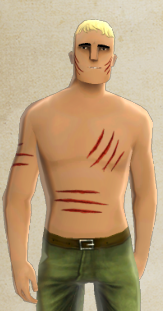 File:Freddy's Flesh Wounds.PNG