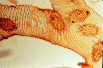Tracheal mite - Acarapis woodi