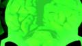Thumbnail for version as of 14:20, September 20, 2015
